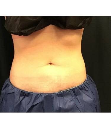 CoolSculpting – Abdomen